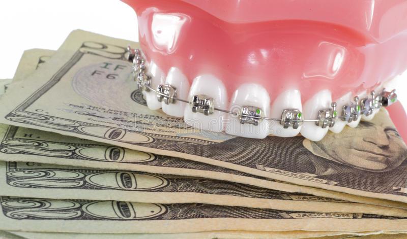 cat costa un aparat dentar ceramic