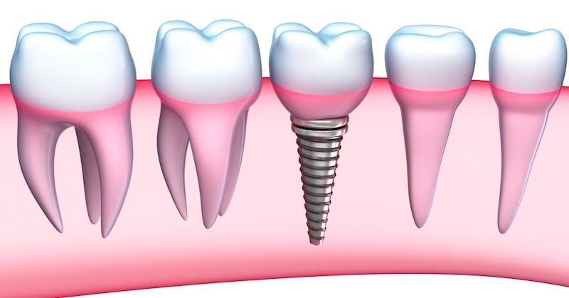 implant dentar la diabetici, fumatori si gravide