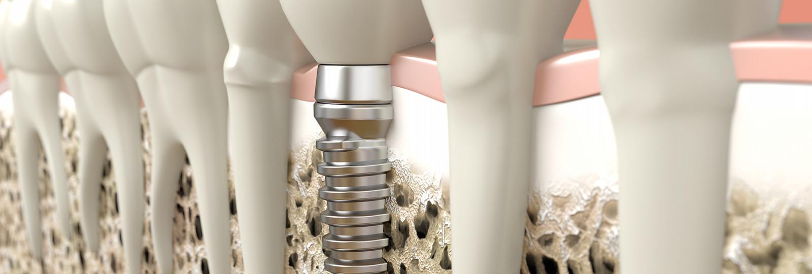 implant dentar riscuri