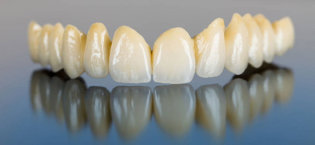 coroane dentare total ceramice