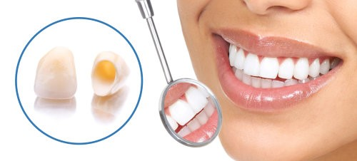 coroane dentare total fizionomice