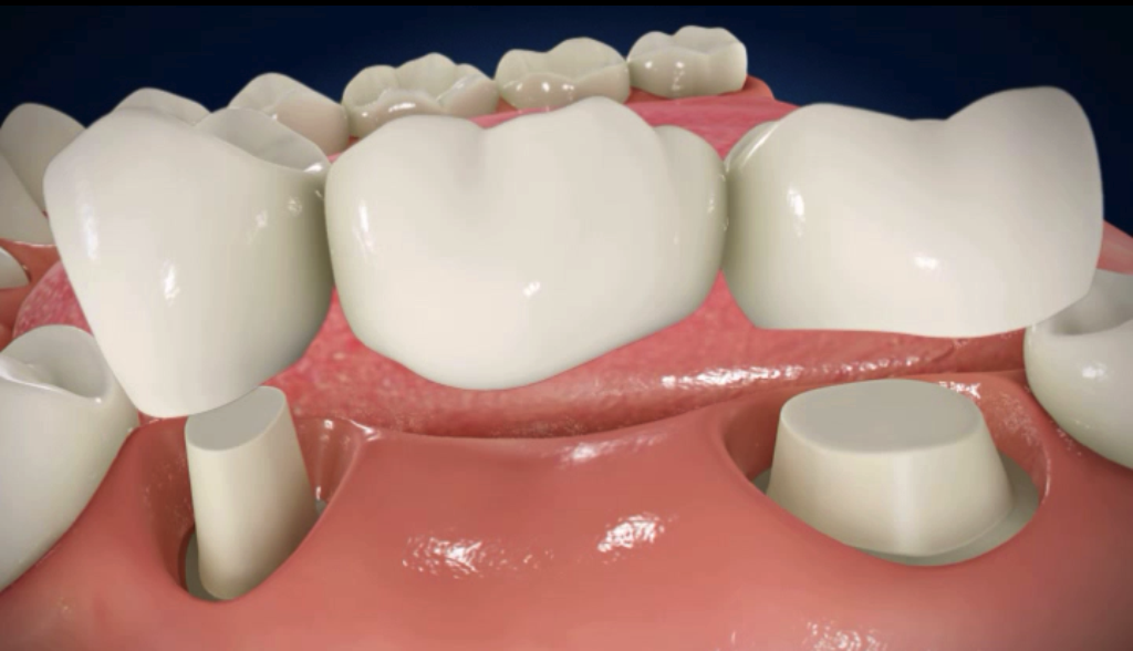 punti dentare