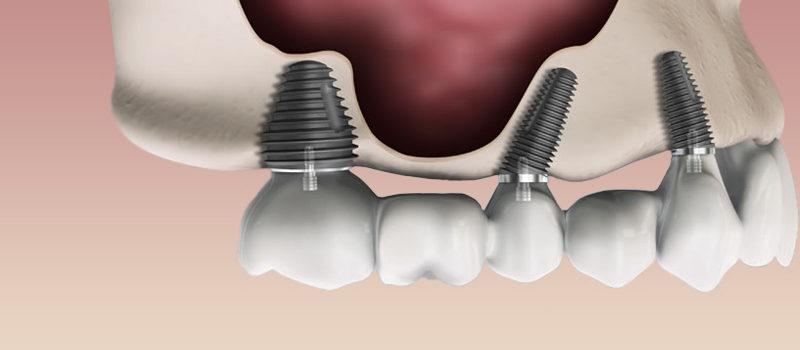 coroane pe implanturi