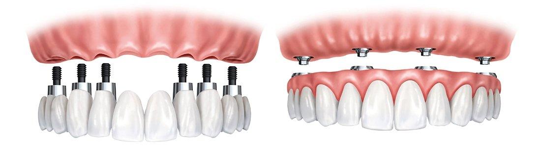 proteza scheletata pe implanturi