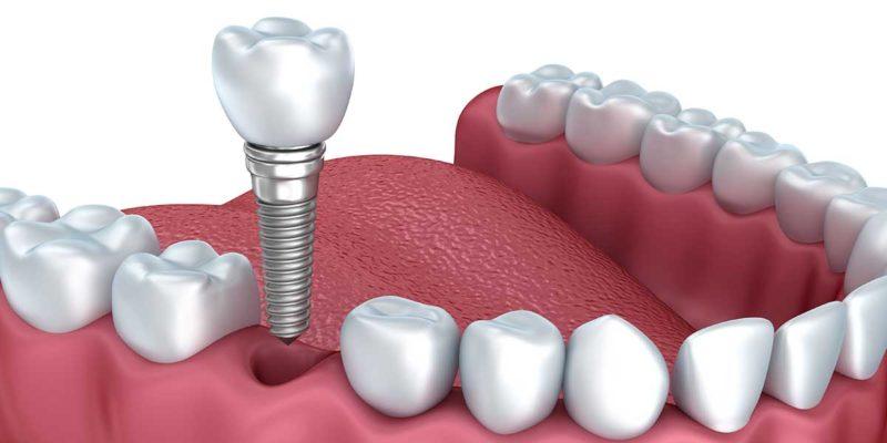 implant-masea-pret-bucuresti