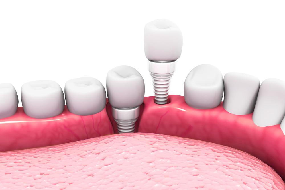 indepartare implant