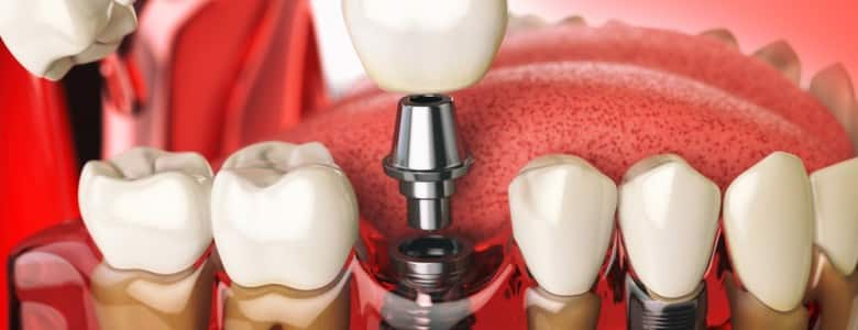 tipuri-implanturi-dentare
