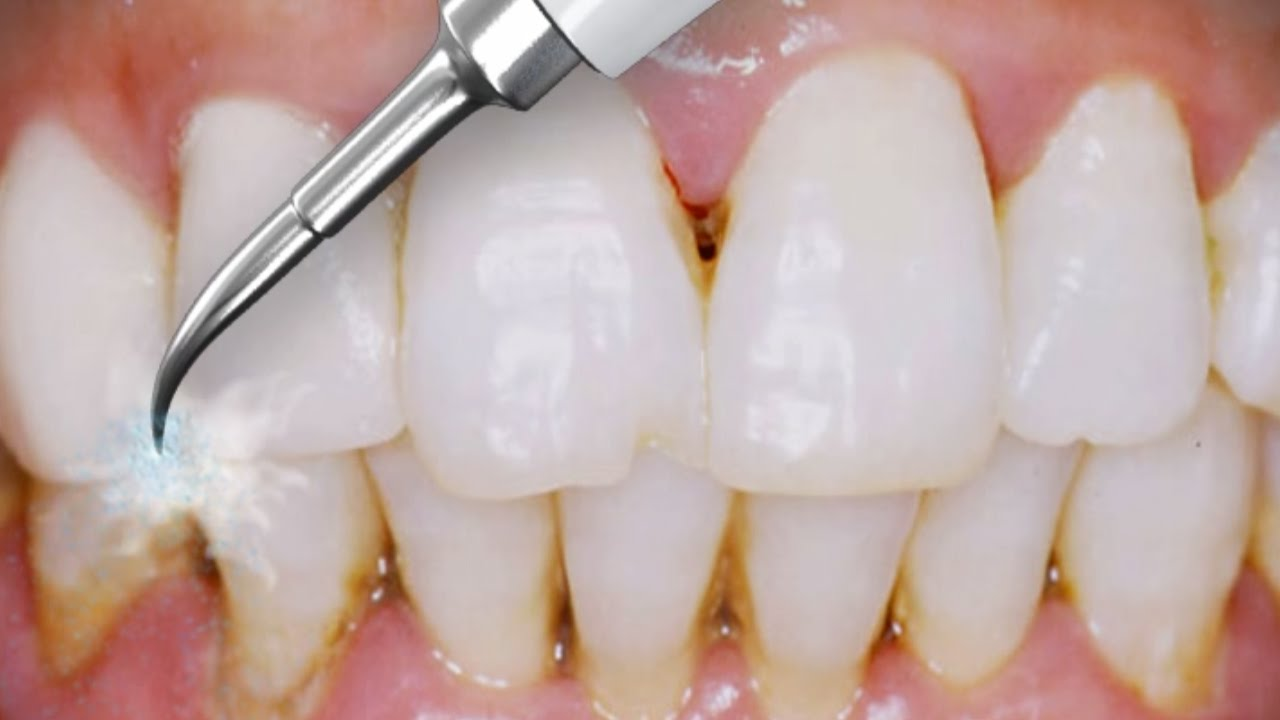 detartraj-dentar-metode-airflow-ultrasunete