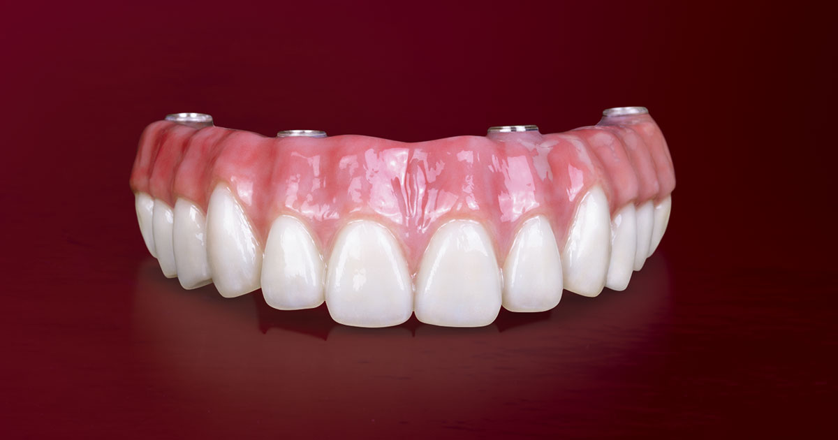 cea-mai-buna-proteza-dentara