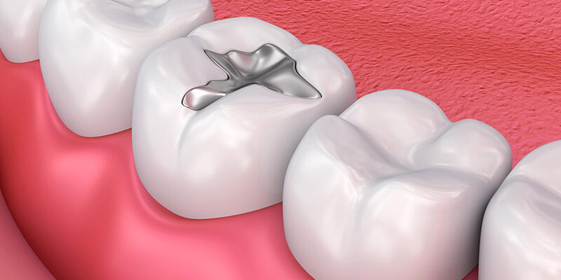 plomba-dentara