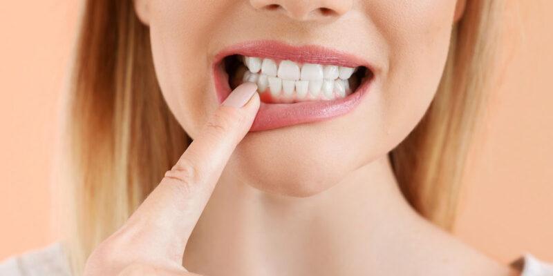 gingivita-cauze-tratament-simptome-copii-acuta