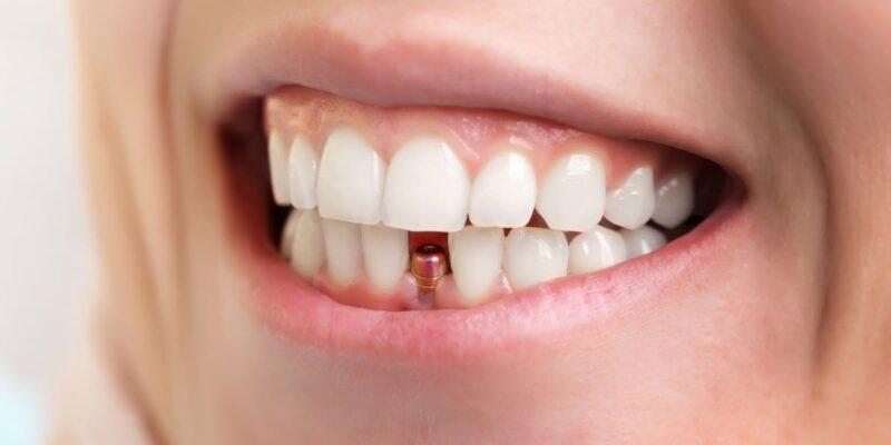 ce-mananc-dupa-implant-dentar